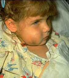 Swelling caused by Hib infection: Photo Courtesy of the Children's Immunization Project