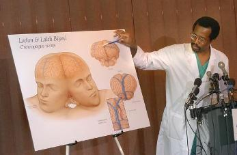 Dr.Carson talking about the conjoined twins (vibesngists.blogspot.com ())