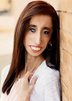 The 29-year old daughter of father Guadalupe Velásquez and mother Rita Velásquez, 157 cm tall Lizzie Velasquez in 2018 photo